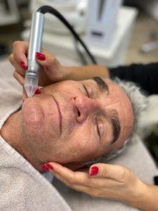 Gesichtspflege mit Mikrodermabrasion